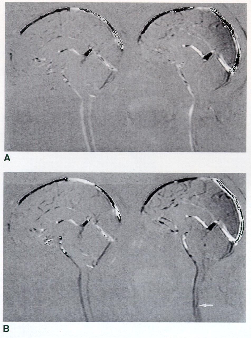 Motion Of The Cerebellar Tonsils In Chiari Type I