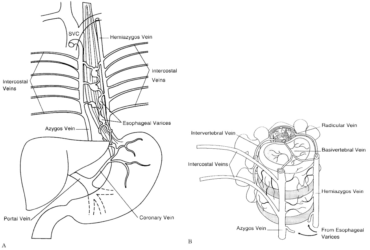 Spinal cord venous infarction following endoscopic sclerotherapy for ...