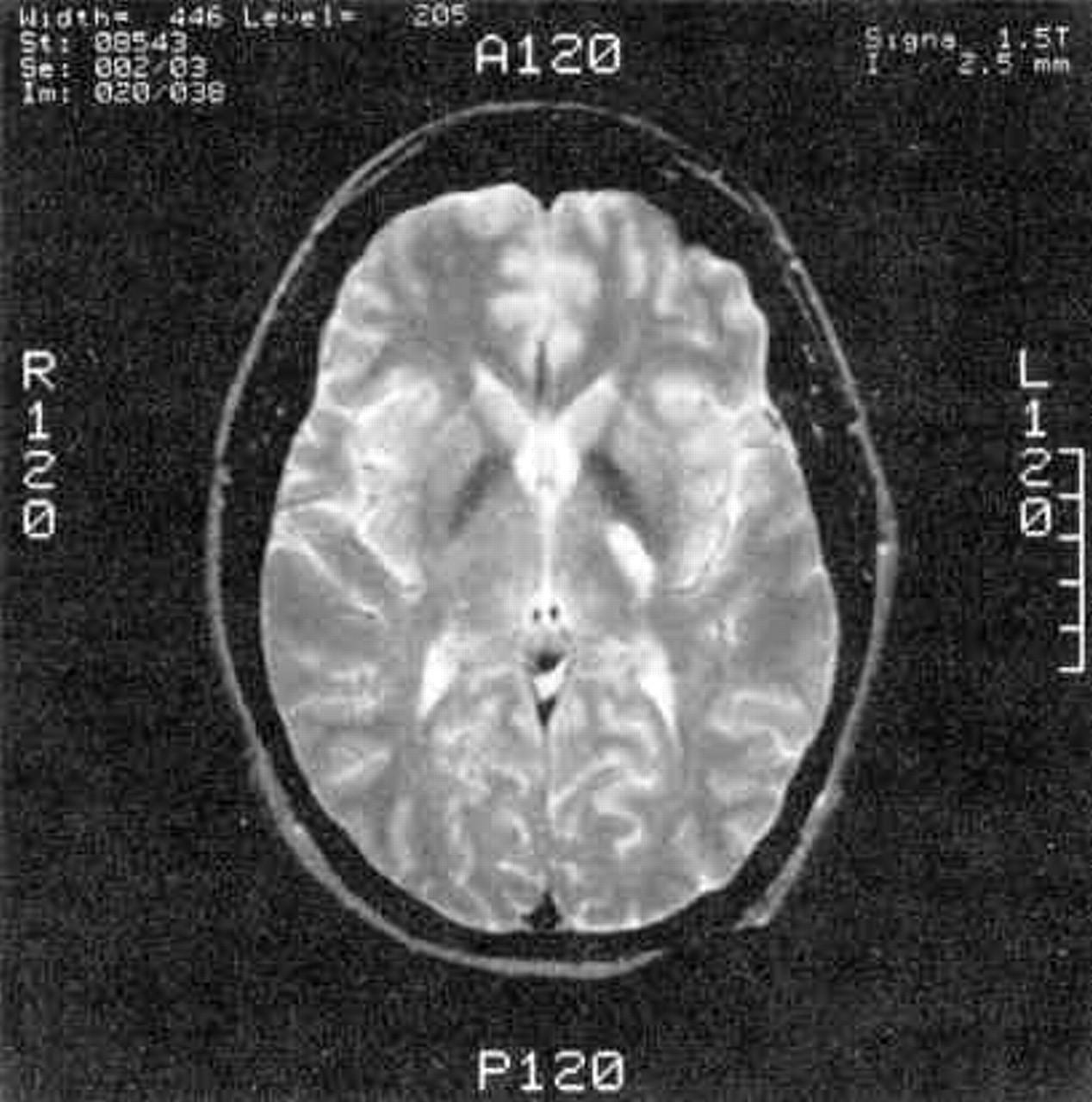 Anterior Choroidal Artery Aneurysm And Stroke Neurology