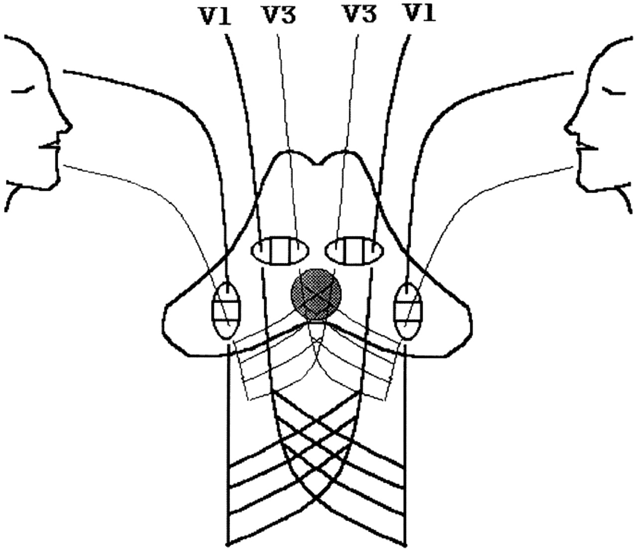 Patterns of sensory dysfunction in lateral medullary infarction