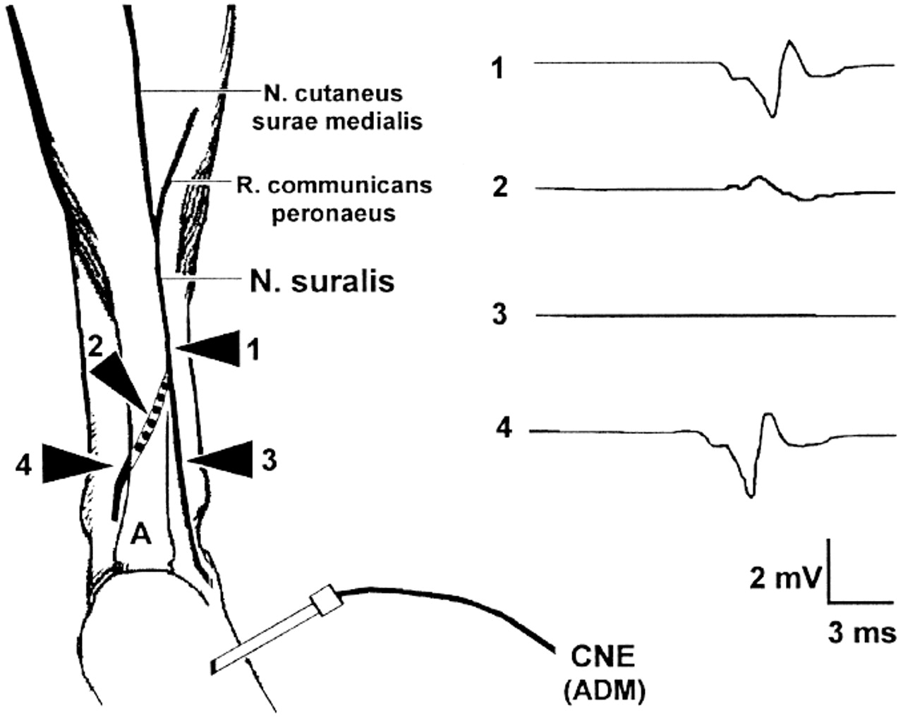 Motor Fibers In The Sural Nerve Of Humans Neurology