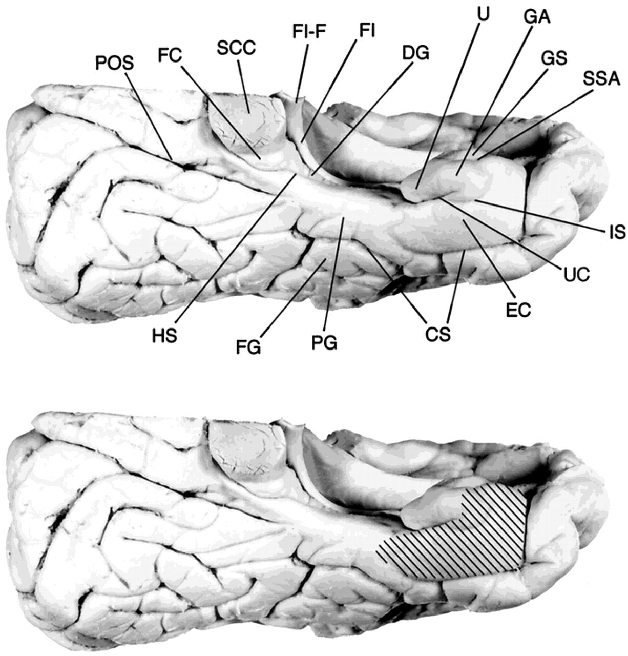 Entorhinal Cortex In Temporal Lobe Epilepsy Neurology