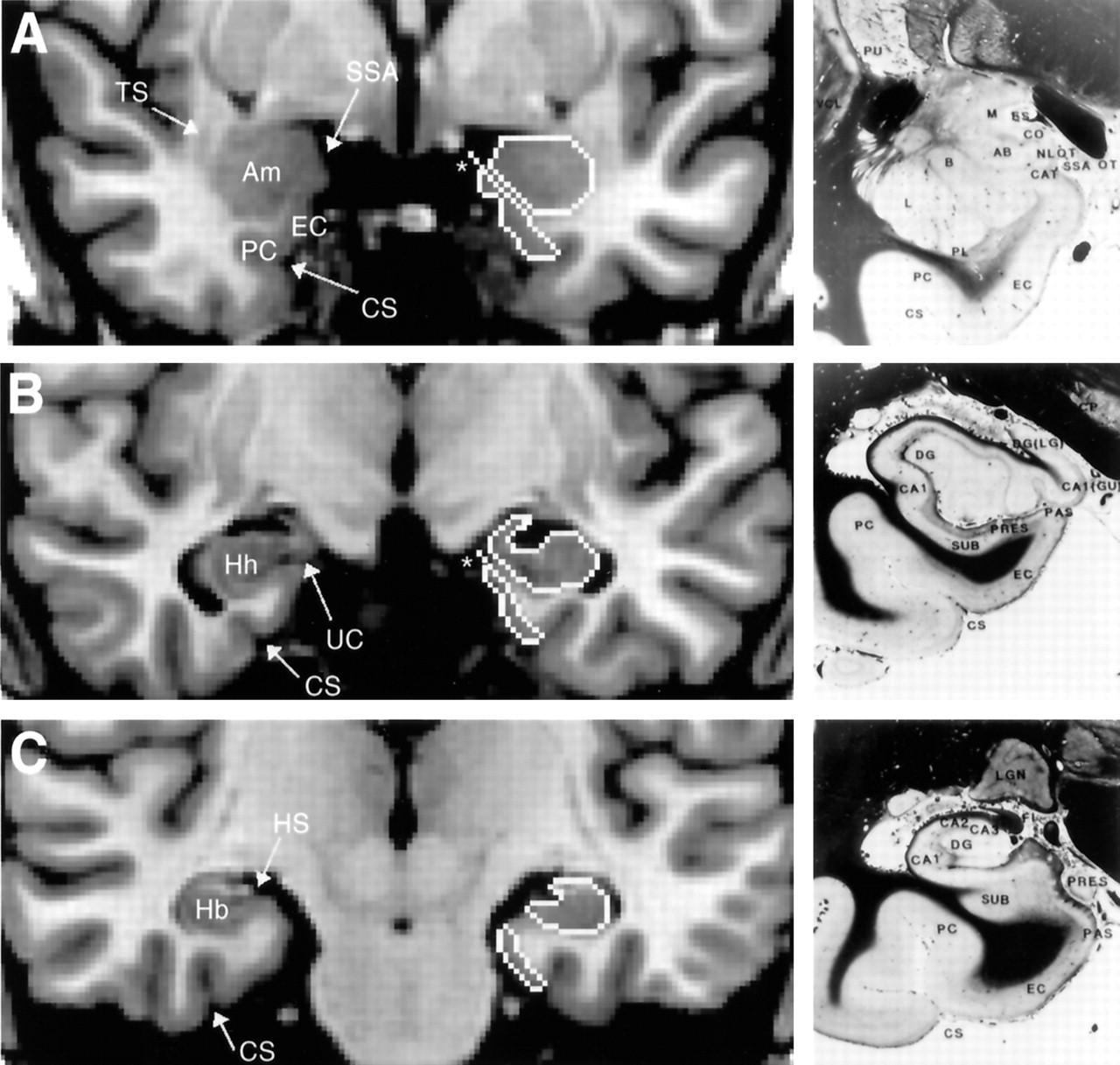Entorhinal cortex in temporal lobe epilepsy | Neurology
