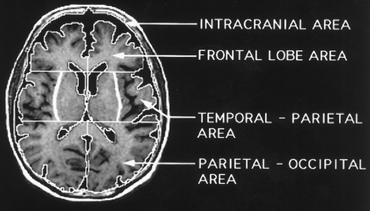 Brain Normal Weight T1-weighted Axial Brain