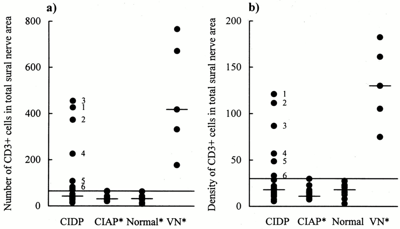 The Diagnostic Value Of Sural Nerve T Cells In Chronic Inflammatory