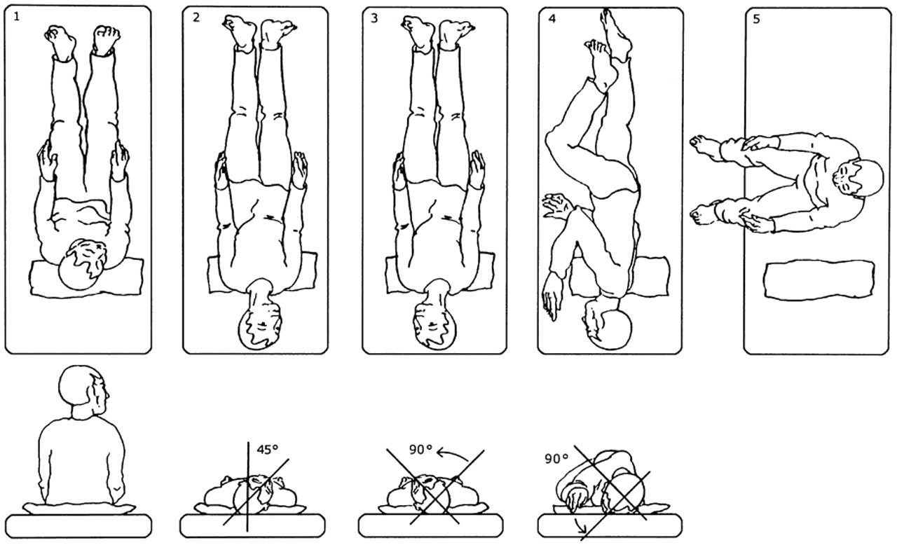 epley maneuver homw instruction pictures.