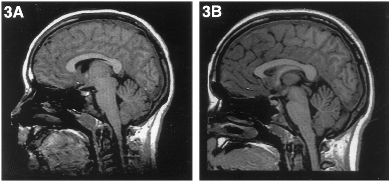 Reduction of corpus callosum growth after severe traumatic