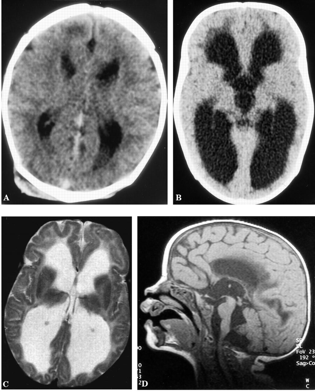 Acute hydrocephalus in nonketotic hyperglycinemia | Neurology