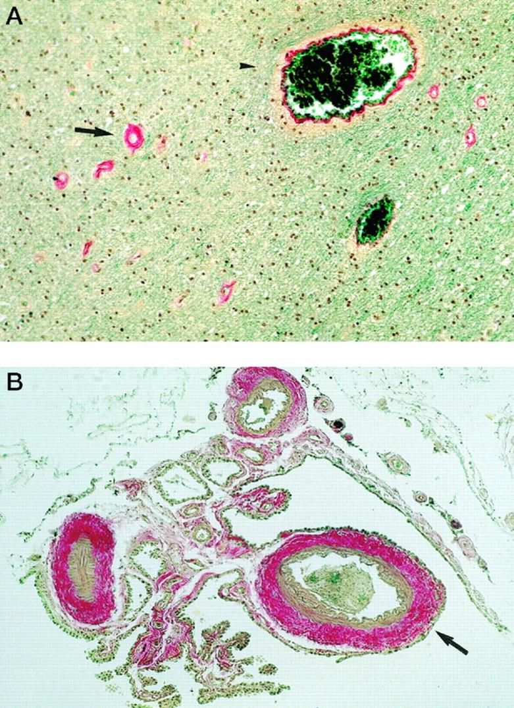 embolus und thrombus