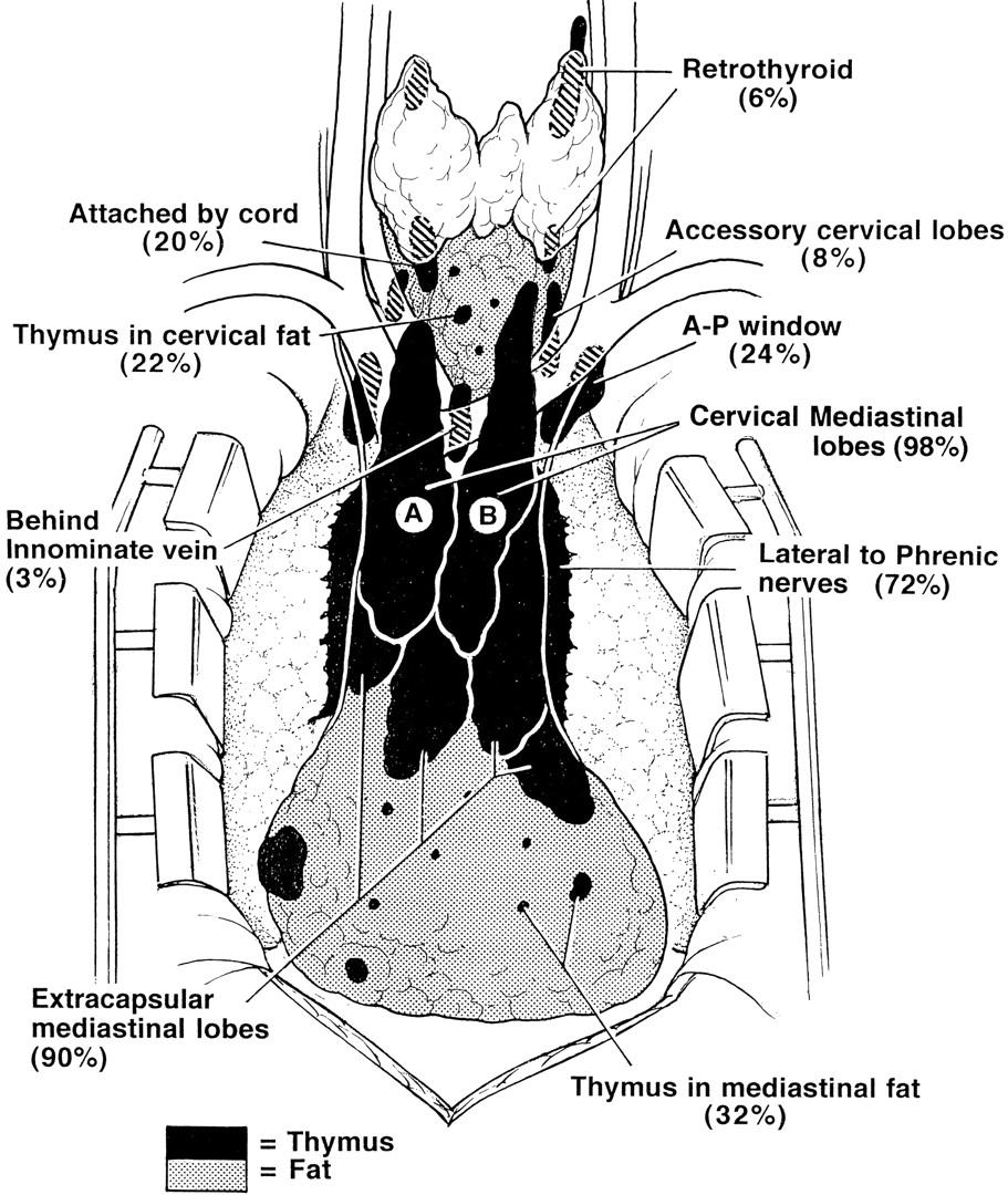 Myasthenia gravis | Neurology