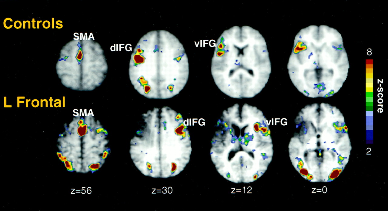 Neural Correlates Of Recovery From Aphasia After Damage To Left