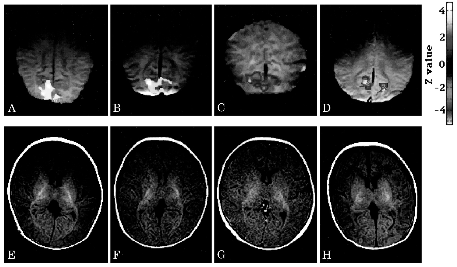 A milestone for normal development of the infantile brain detected ...
