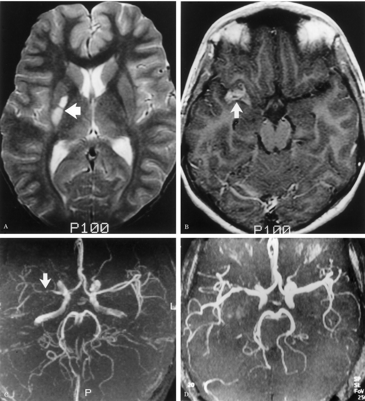 Serial MR angiography and contrast-enhanced MRI in