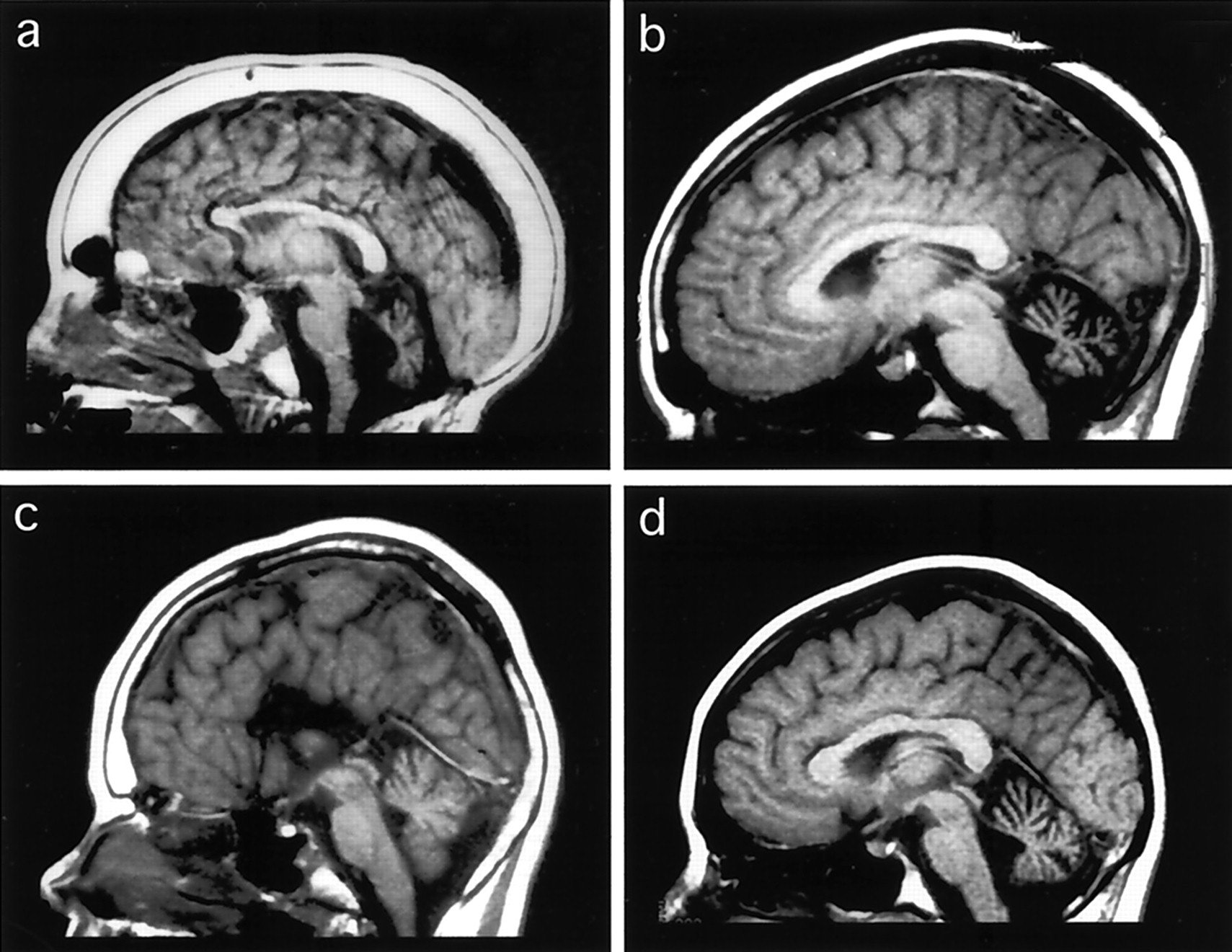 familial cerebellar ataxia with muscle coenzyme q10 deficiency, Skeleton