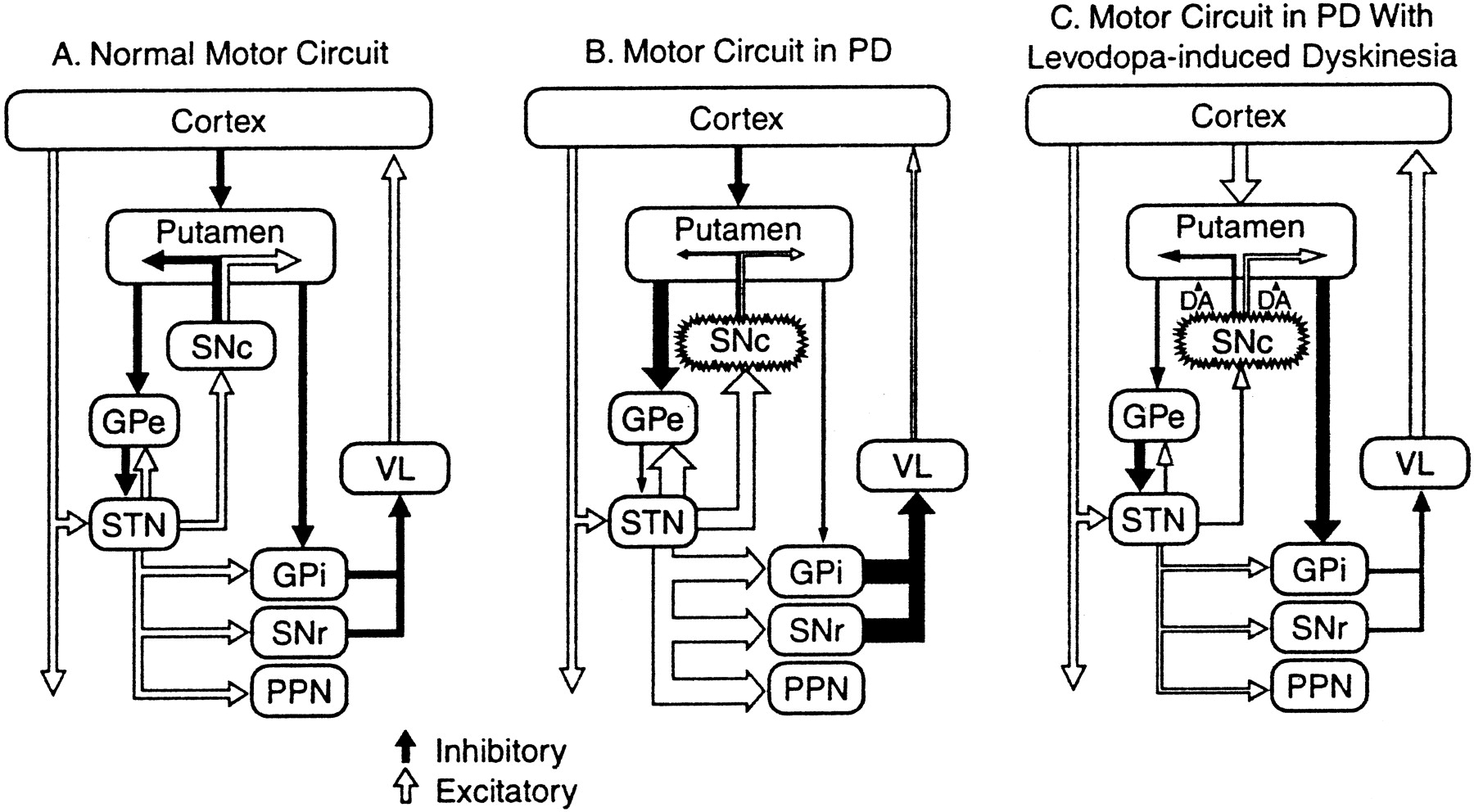 An Algorithm Decision Tree For The Management Of Parkinsons Circuits Gt H Bridge Motor Driver Theory Practical Circuit Using Download Figure Open In New Tab