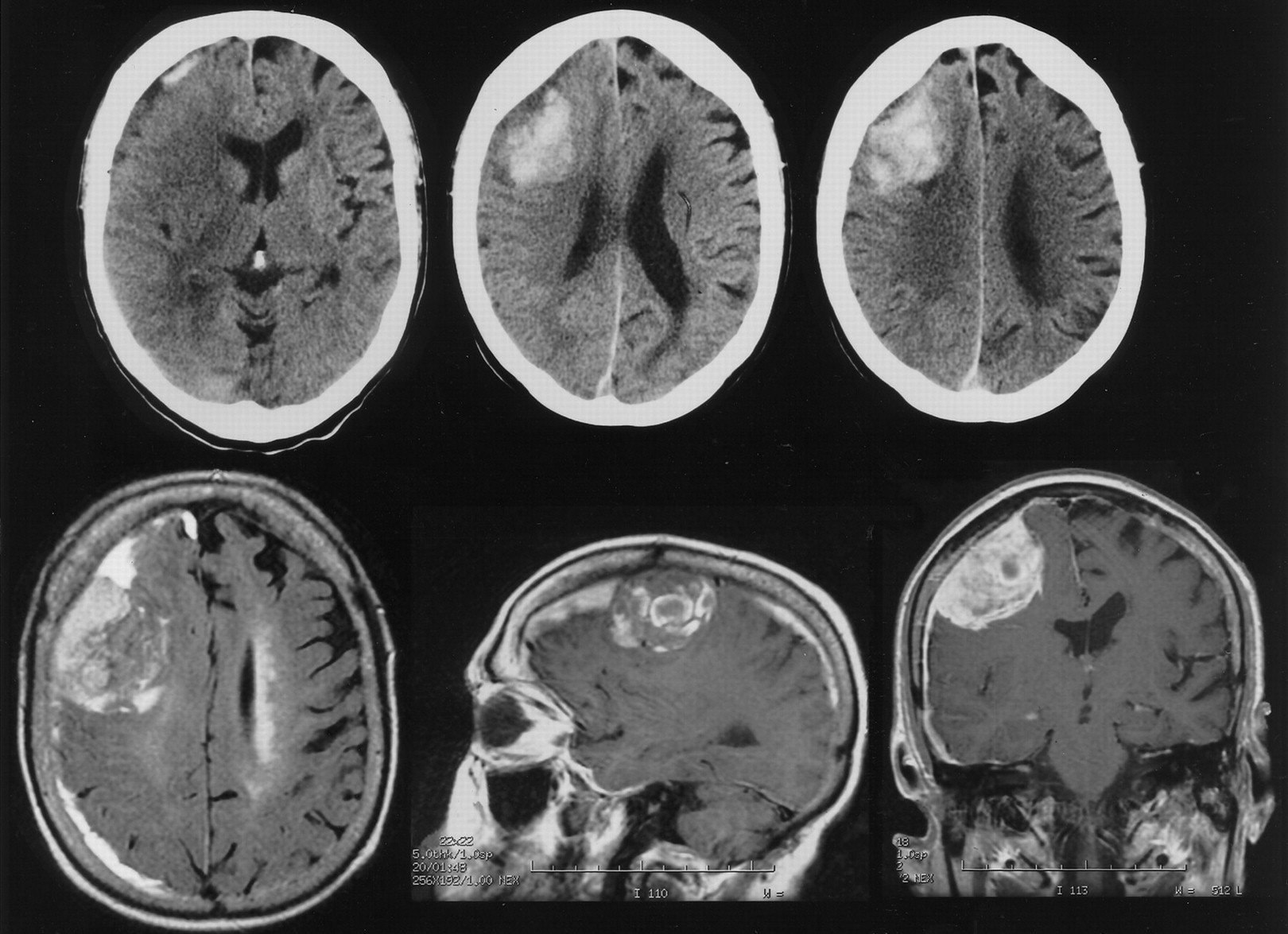Meningioma disguised as cerebral hematoma | Neurology