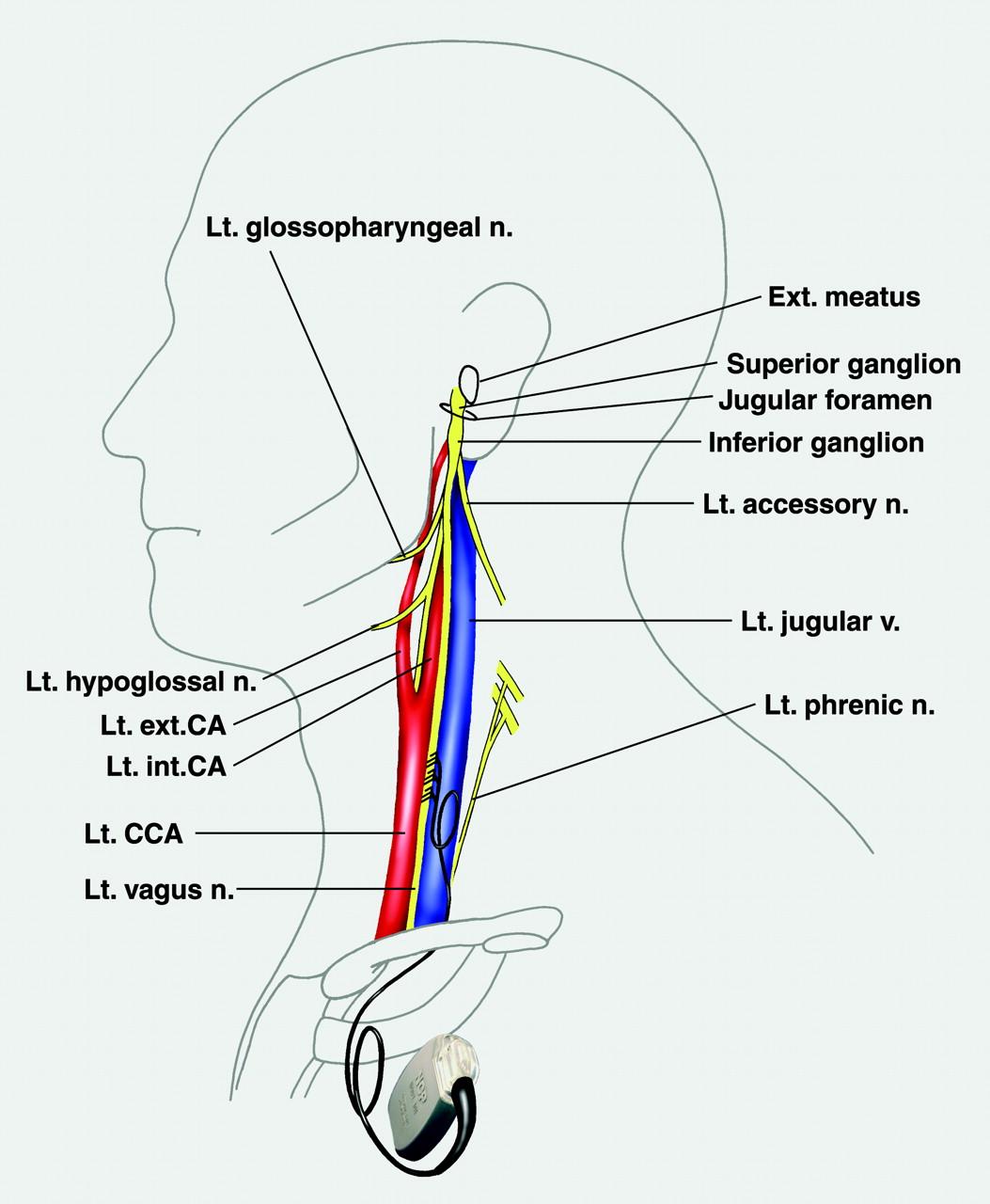 Vagus Nerve Stimulation The Cervical Vagus Nerve And