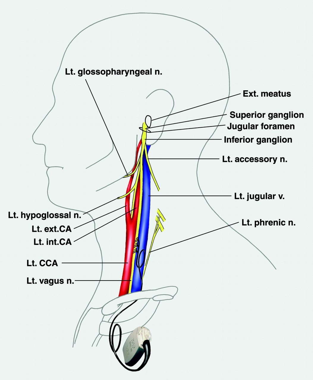 Therapeutic Mechanisms Of Vagus Nerve Stimulation Neurology