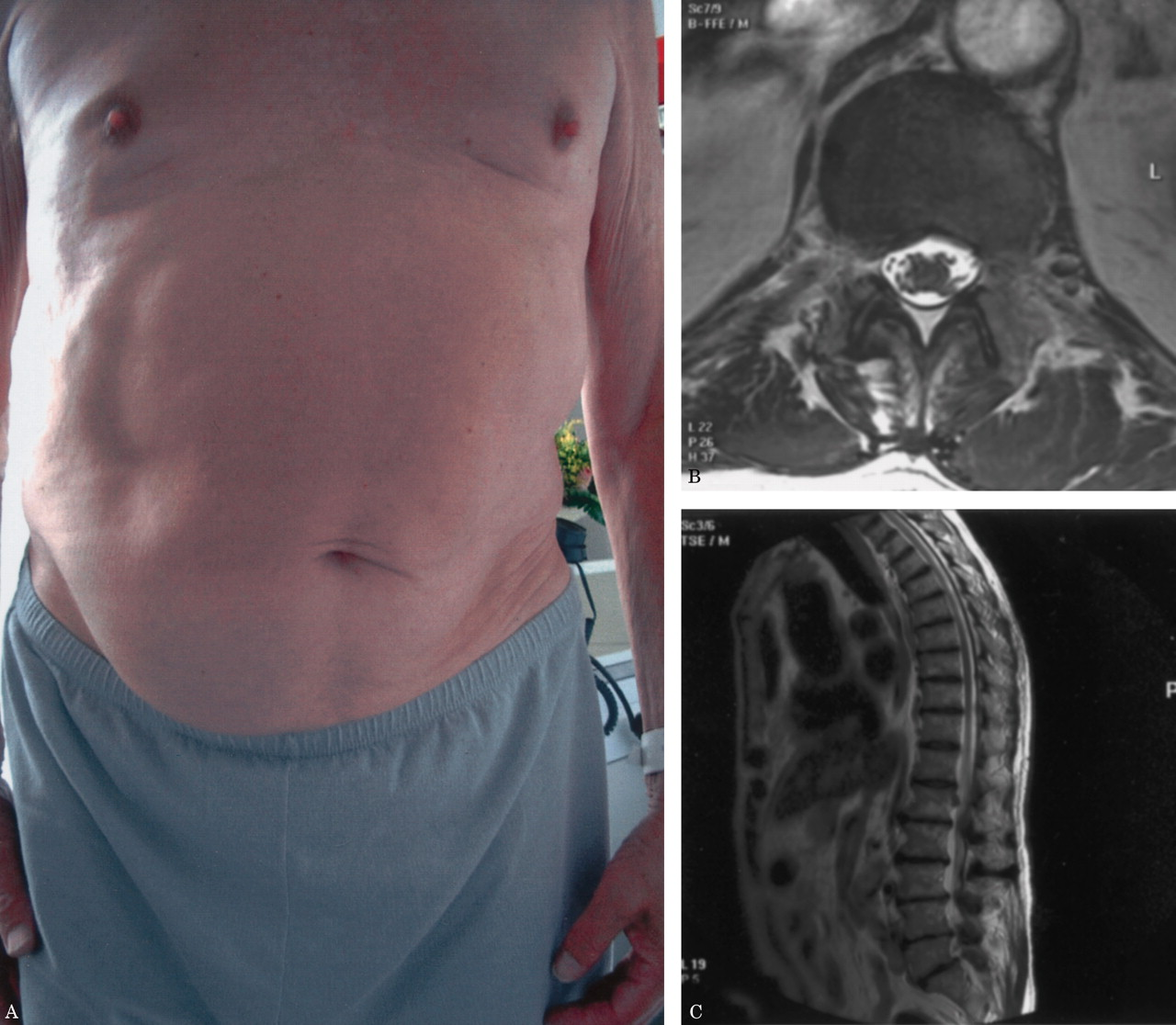 Painful Swelling Of The Abdomen Neurology