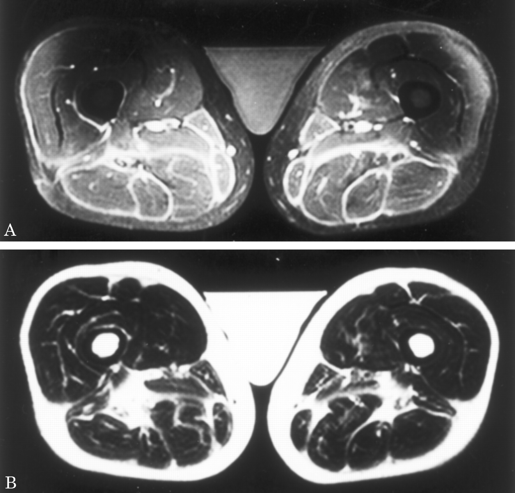 Eosinophilic Fasciitis Mri Evaluation Neurology