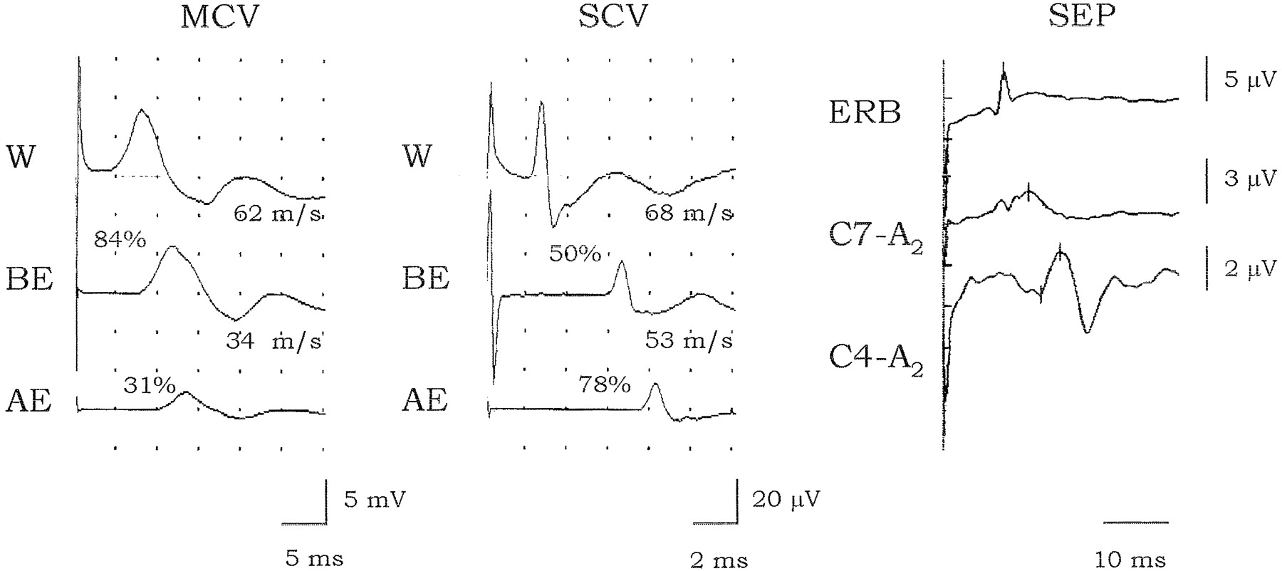 Acute motor conduction block neuropathy Another Guillain