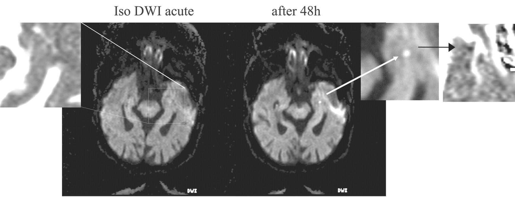 transient global amnesia emedicine