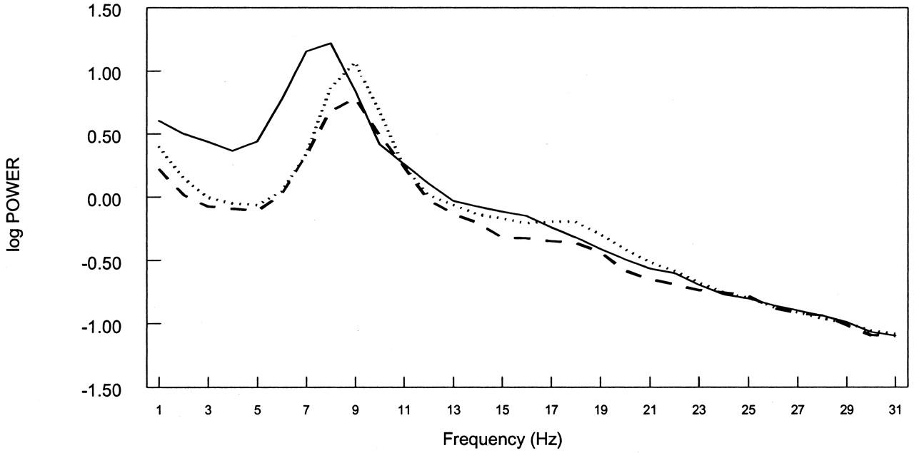 Association between waking EEG slowing and REM sleep behavior