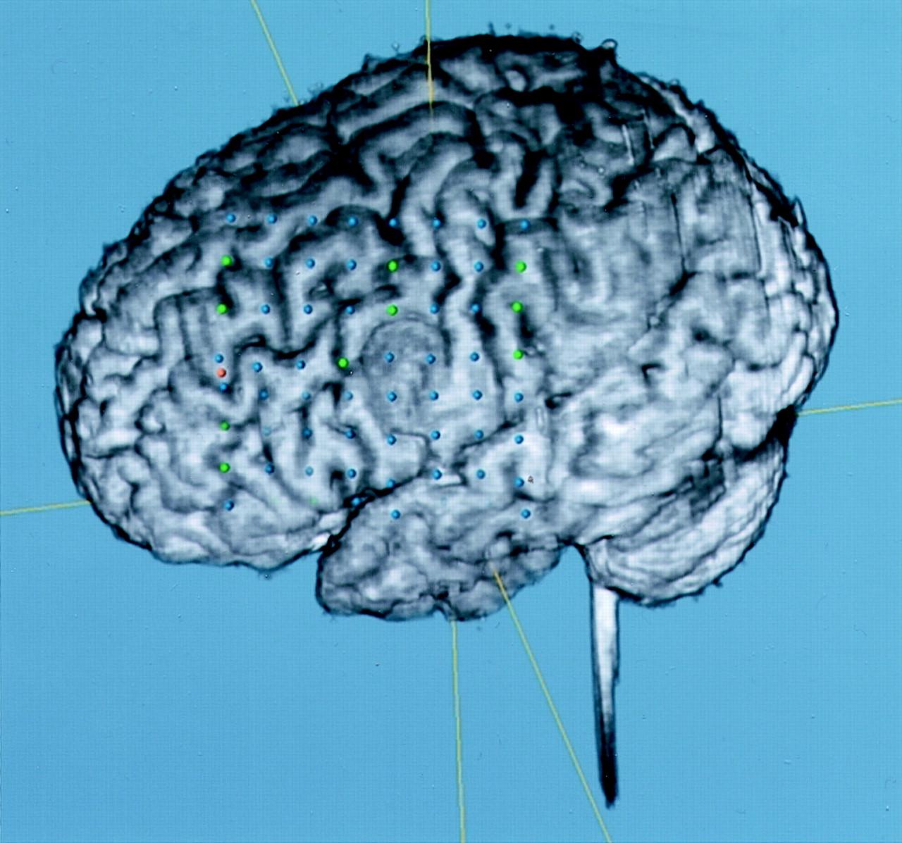 cortical dysplasia treatment