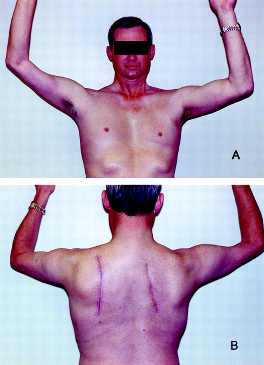 facioscapulohumeral muscular dystrophy emedicine