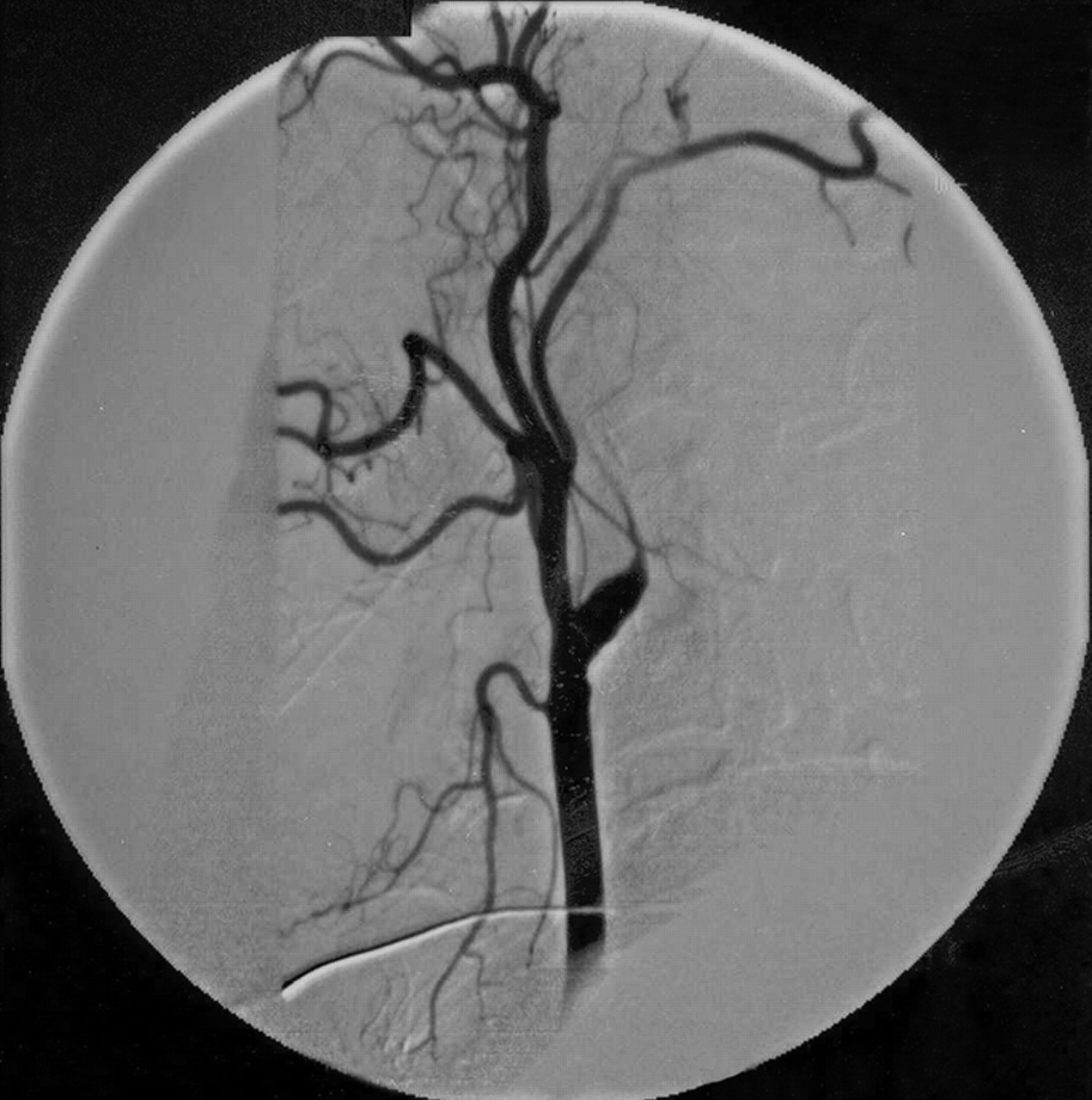 Occlusion Carotid Carotid Artery Occlusion
