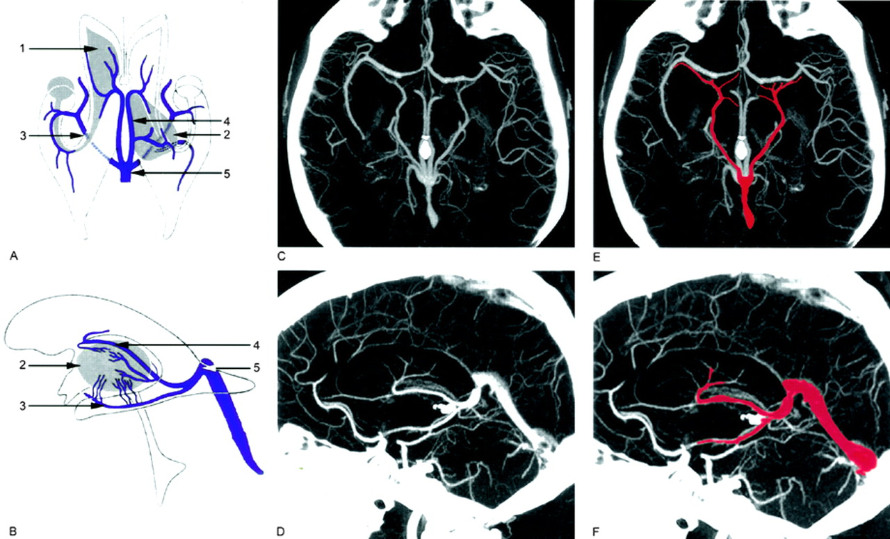 The spectrum of presentations of venous infarction caused by deep ...
