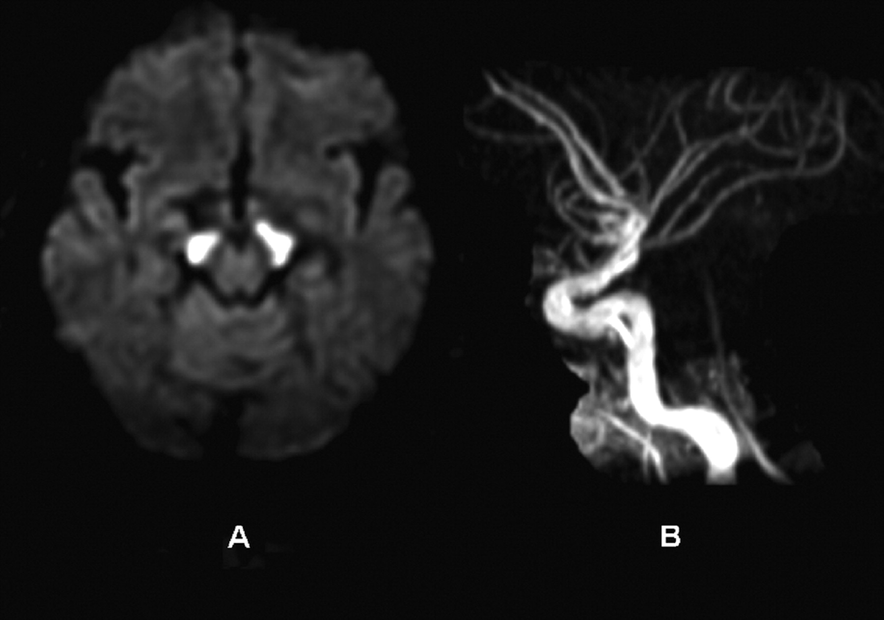 Locked-in syndrome resulting from bilateral cerebral peduncle ...