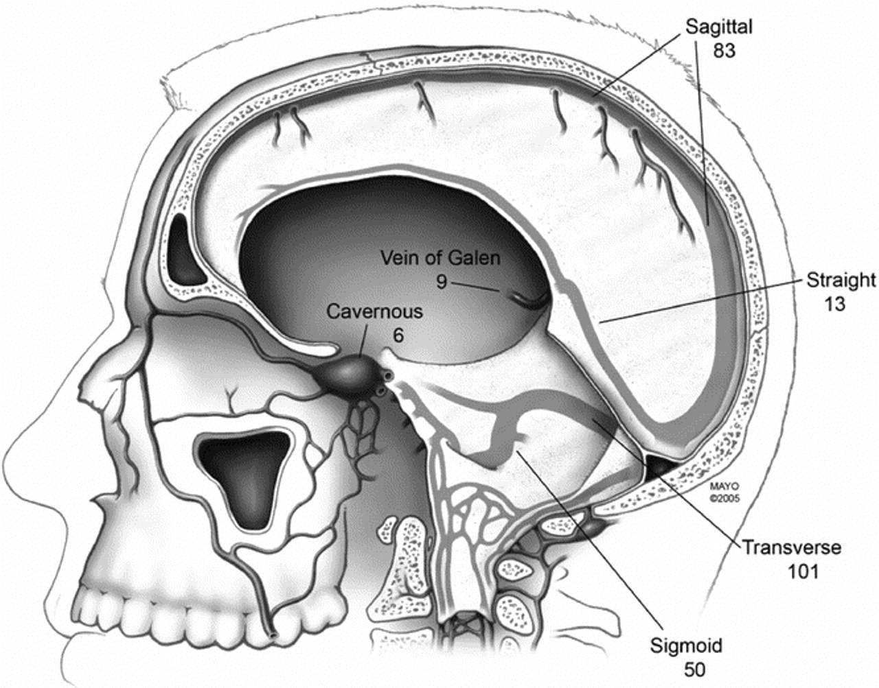 Cerebral Venous Sinus Thrombosis Neurology
