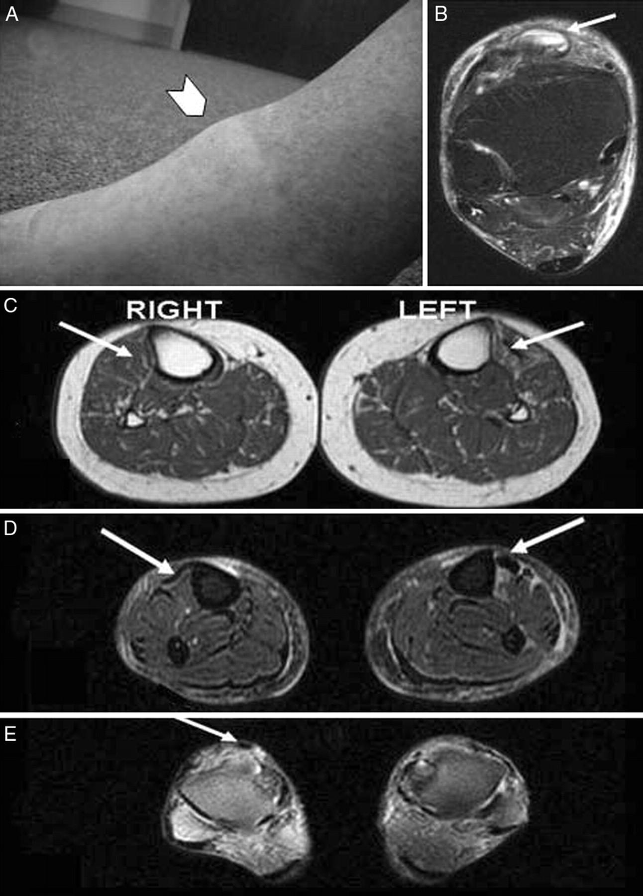 Spontaneous Tibialis Anterior Tendon Rupture A Rare Cause Of Foot