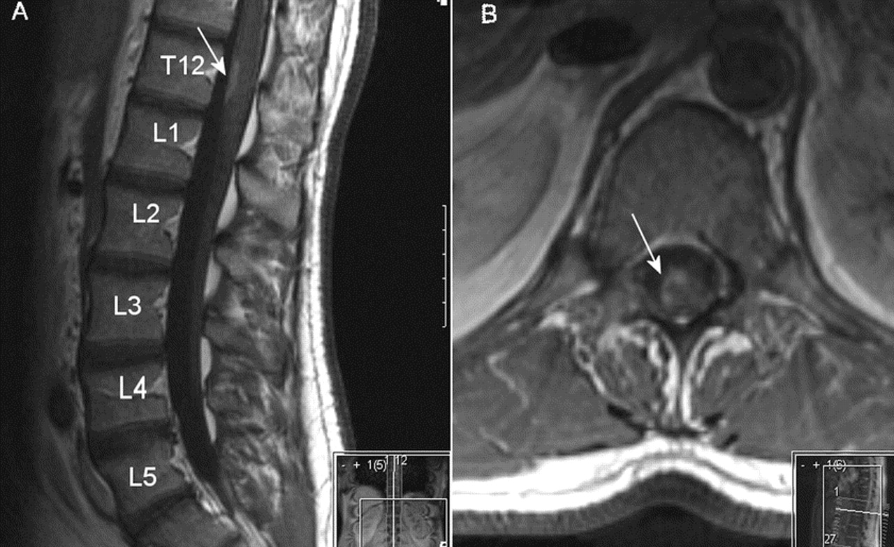 Teaching Neuroimage The L5 Spinal Cord Segment Neurology