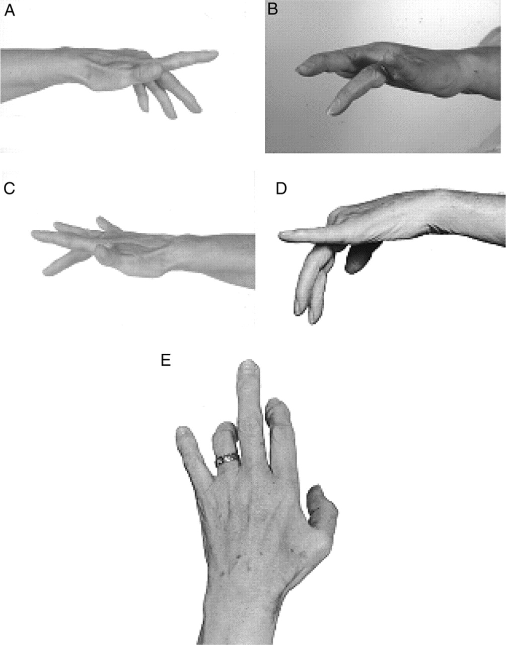Download figure · Open in new tab · Download powerpoint. Figure 1 Typical weakness of extension of individual fingers in multifocal motor neuropathy