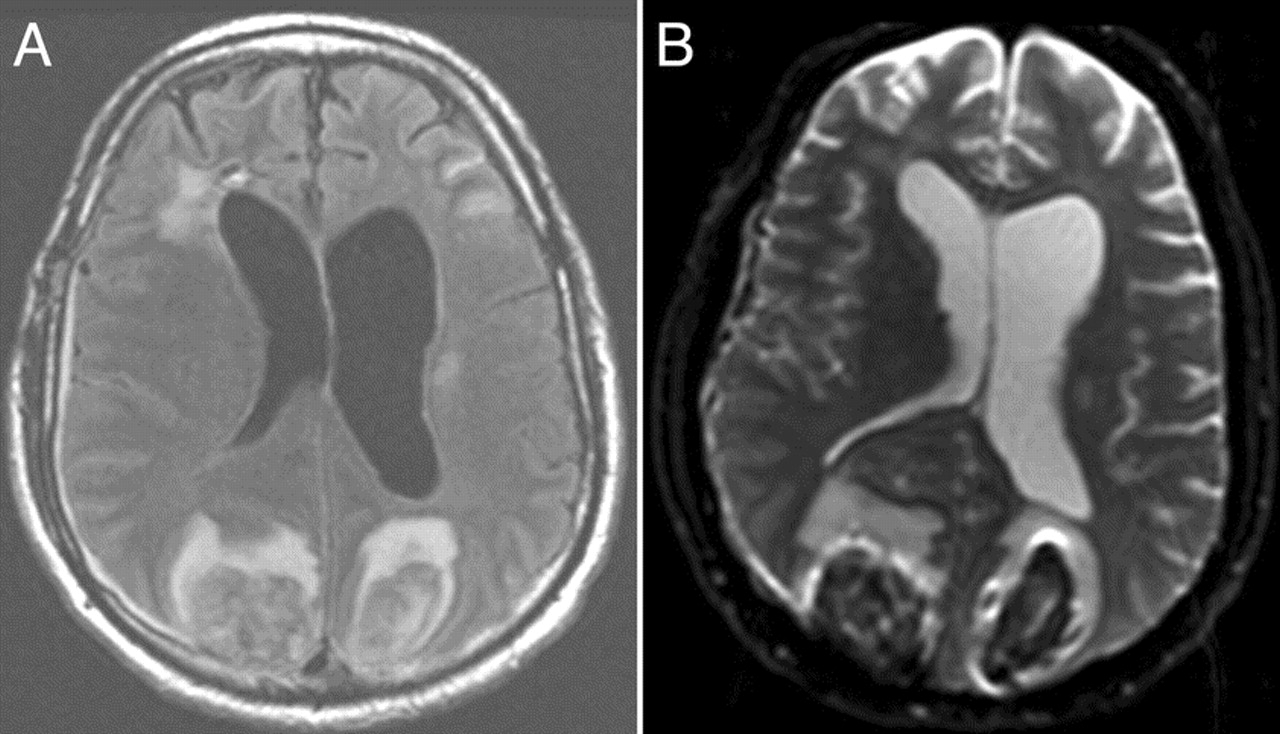 Clinical Reasoning  A case of multiple intracerebral hemorrhagesIntraparenchymal Hemorrhage Mri