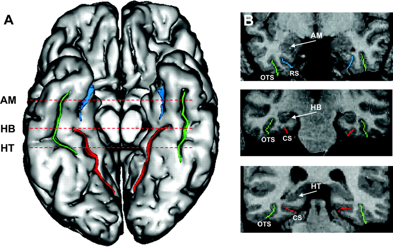 Basal temporal sulcal morphology in healthy controls and patients ...