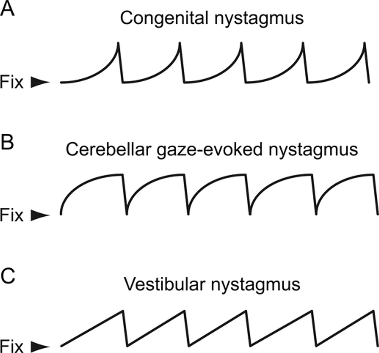 Teaching Video NeuroImage: Acquired or congenital gaze