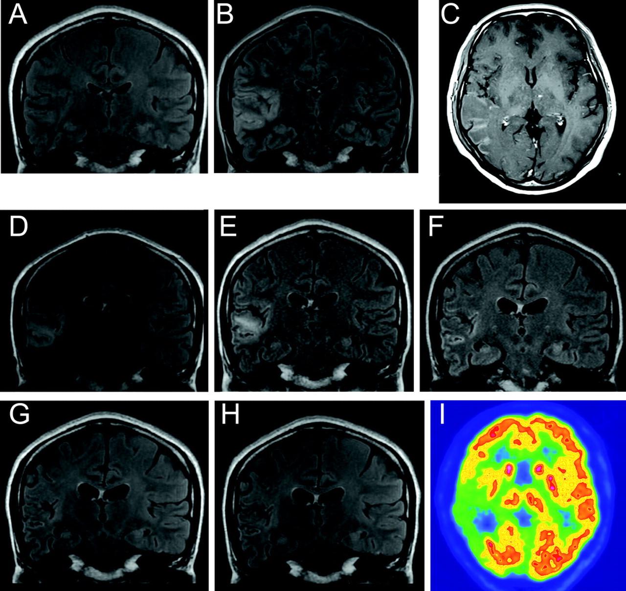 Response Of Anti Nmda Receptor Encephalitis Without Tumor To