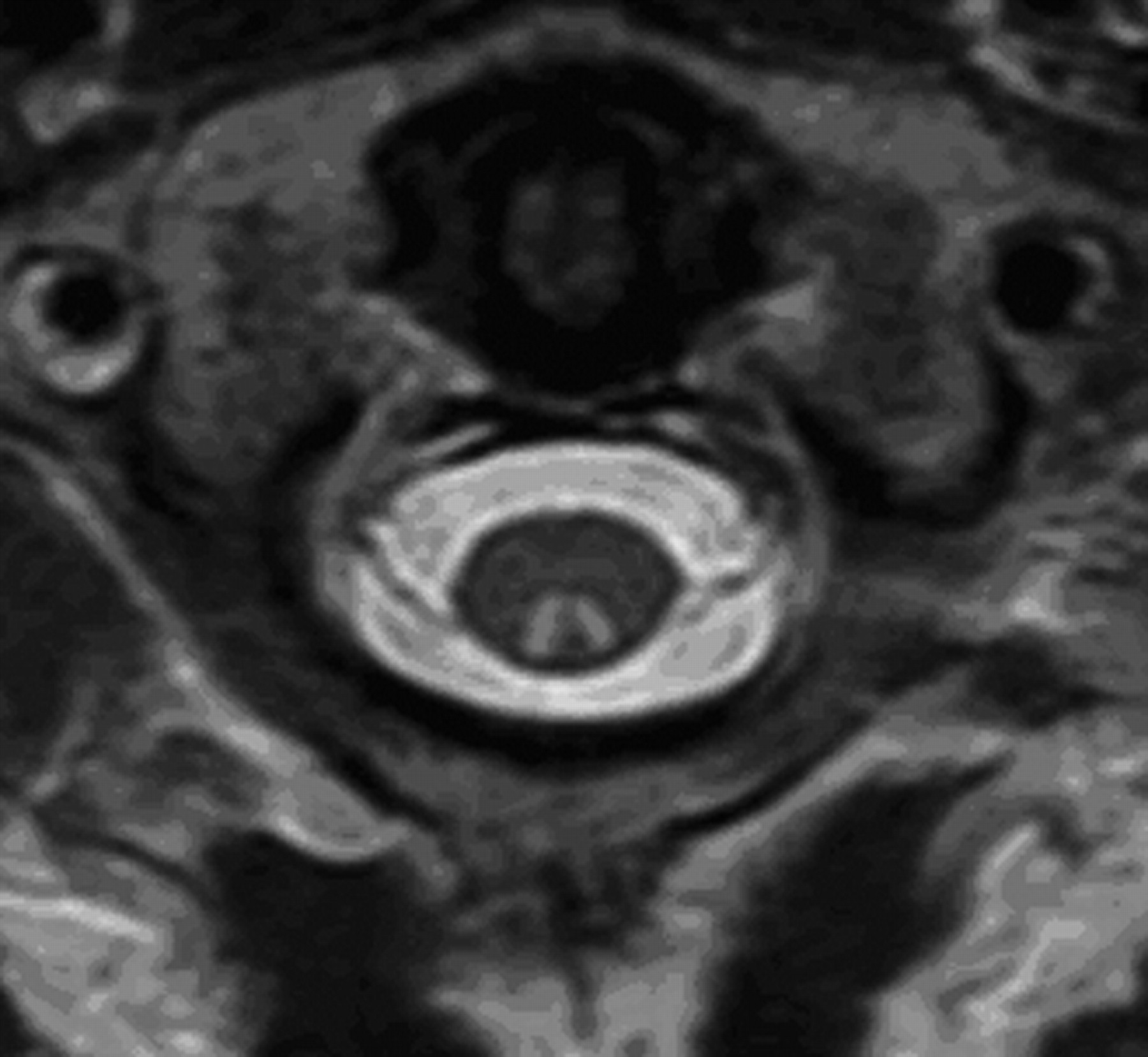 Teaching NeuroImage: Inverted V sign in subacute combined ... B12 Deficiency Spinal Cord
