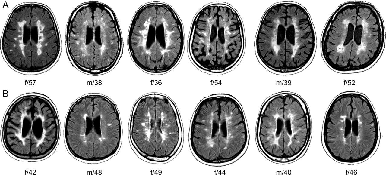 mri features of benign multiple sclerosis neurology