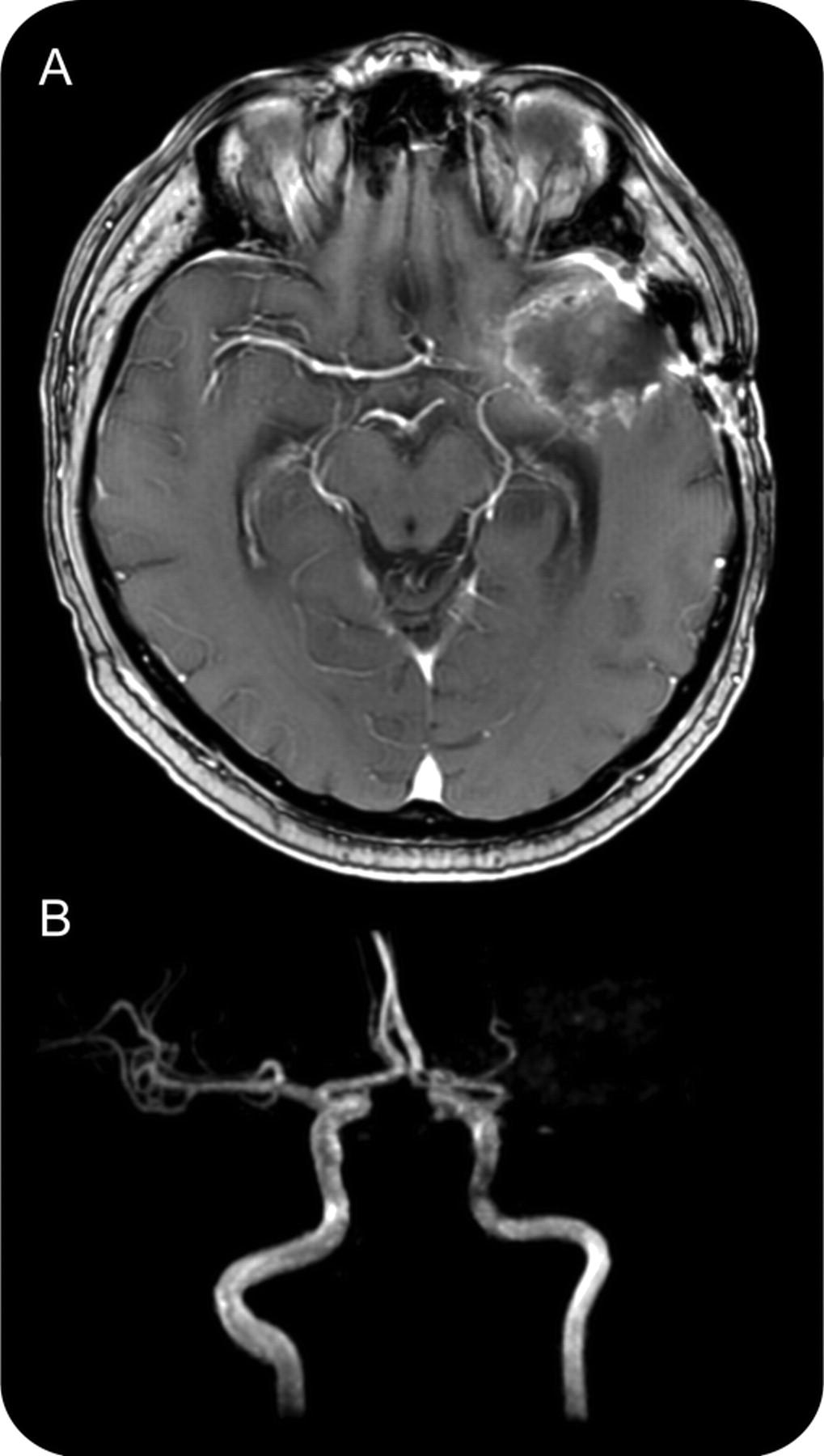 Occlusion Mri Occlusion on Brain Mri And