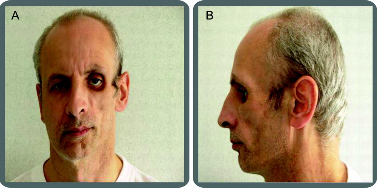 Teaching NeuroImages: Progressive facial hemiatrophy (Parry