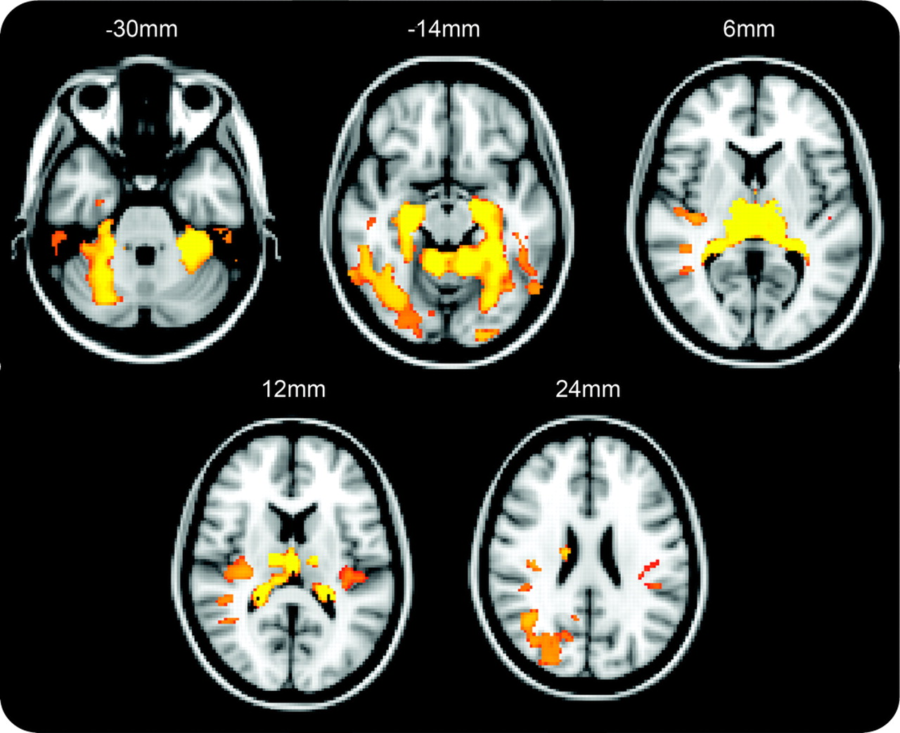White and gray matter alterations in adults with Niemann-Pick ...