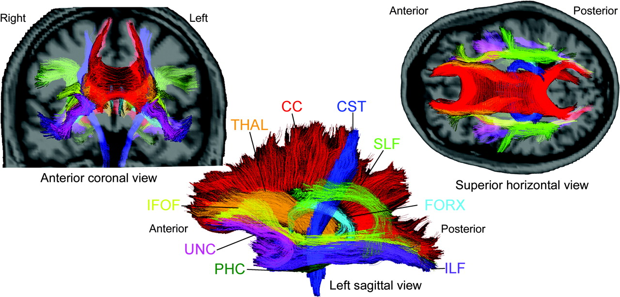 Changes in fiber tract integrity and visual fields after anterior