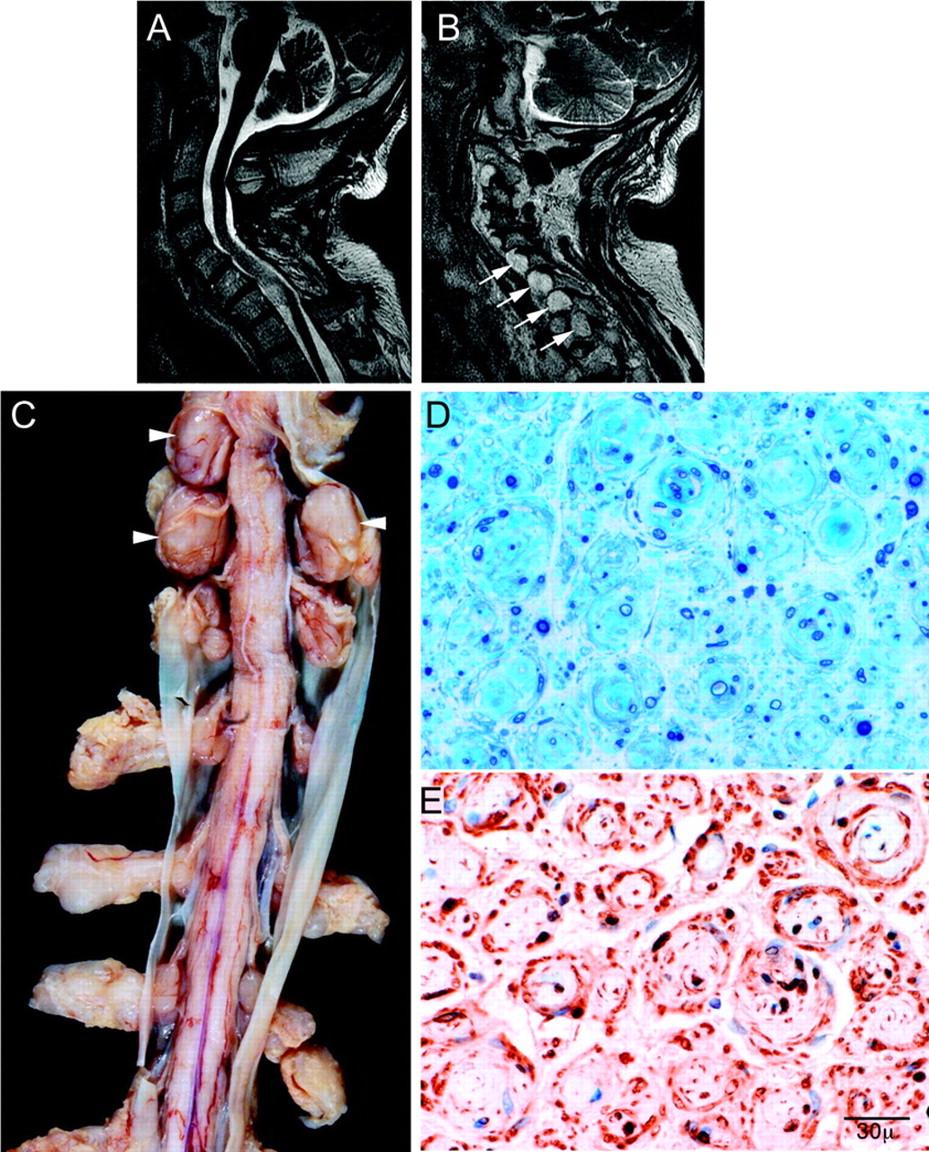 Figure pertrophic nerves in chronic inflammatory demyelinating