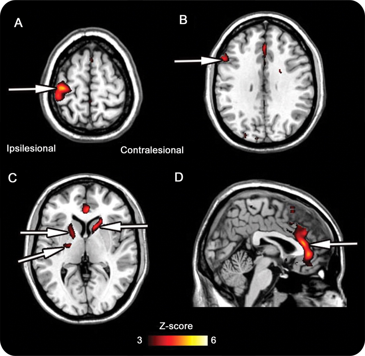 Anatomy and physiology predict response to motor cortex stimulation ...