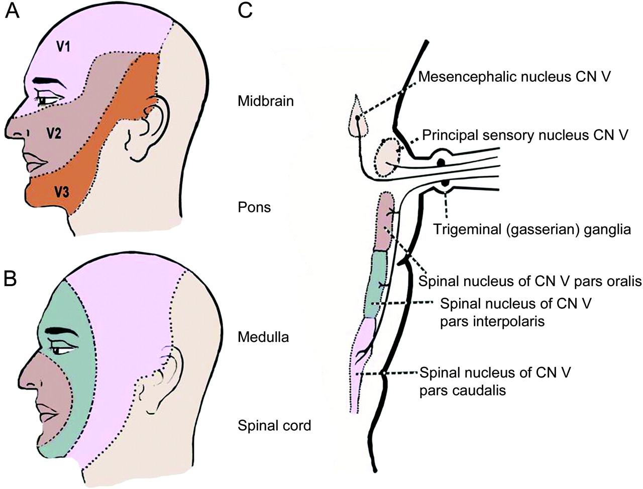 Teaching NeuroImages: Onion-skin pattern facial sensory loss