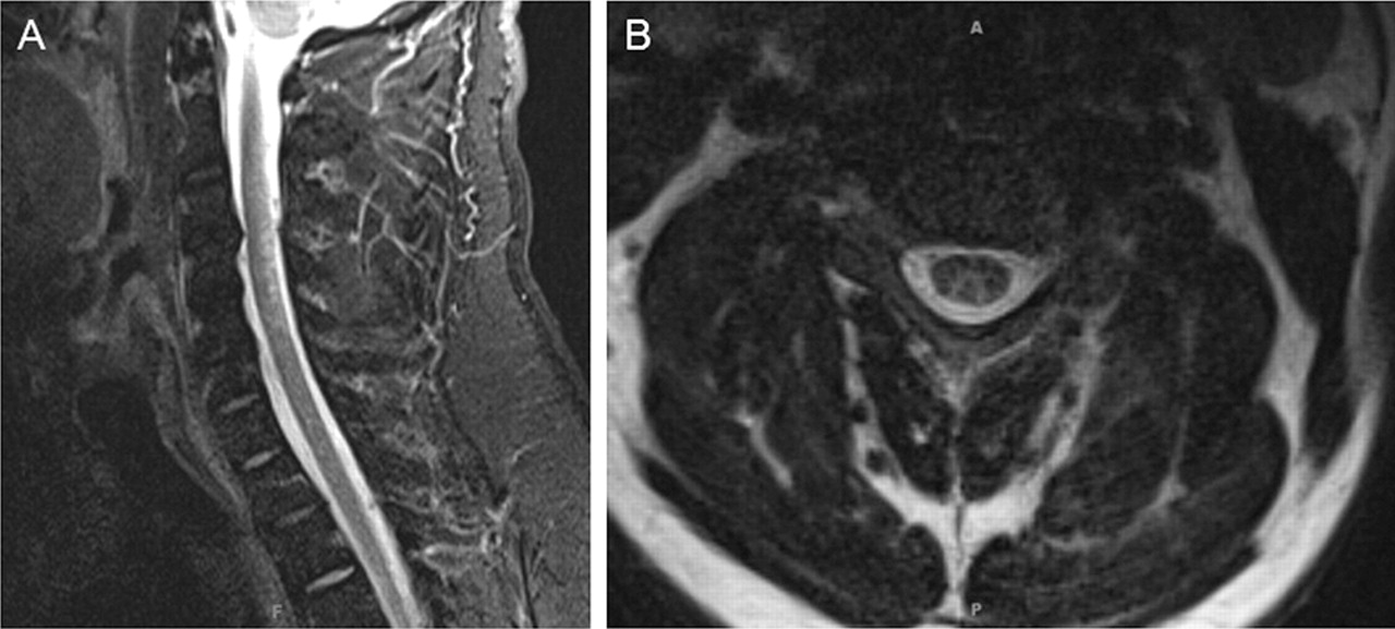 Teaching NeuroImages: Myelopathy due to B12 deficiency in ... B12 Deficiency Spinal Cord